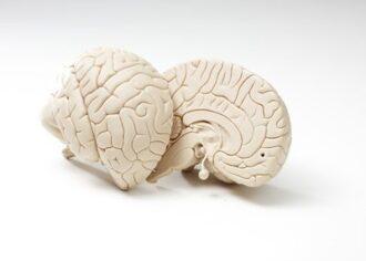 aufgeschnittene Gehirnhälften eines älteren Rauchers.